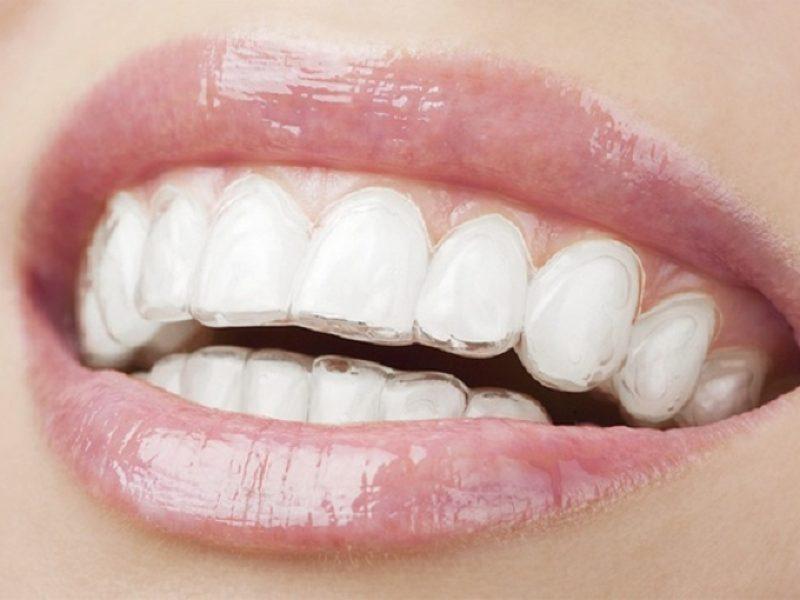 ortodoncia invisible invisalign dentista tona