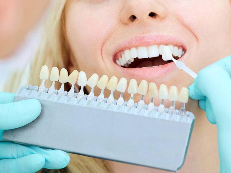 Blanqueamiento dental dentista ident tona