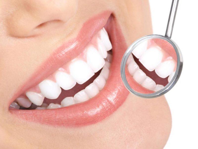 estetica dental dentista ident tona