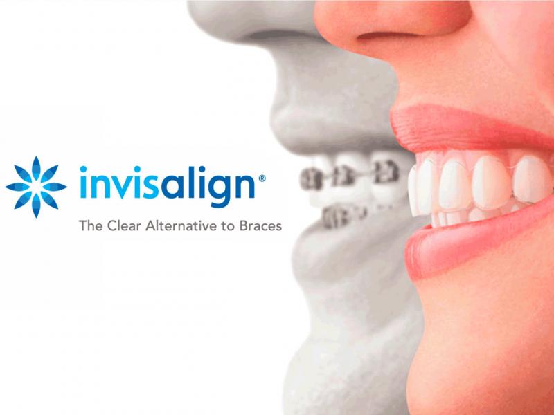 tratamiento ortodoncia invisible invisalign dentista tona