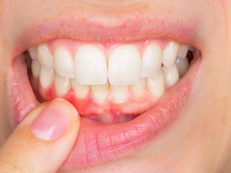 encias hinchadas inflamadas periodoncia