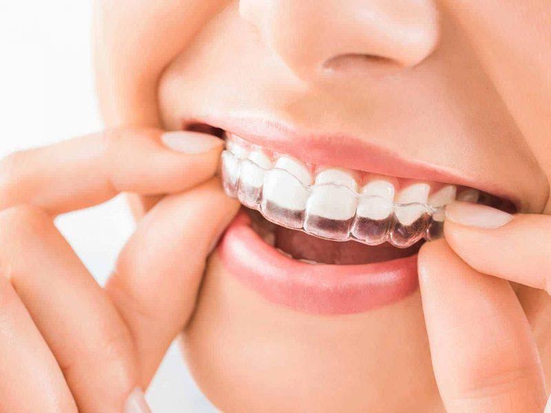 tratamiento ortodoncia invisible invisalign